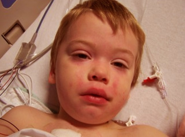 the causes symptoms diagnosis and management of down syndrome Down syndrome information including symptoms, diagnosis, misdiagnosis, treatment, causes, patient stories, videos, forums, prevention, and prognosis.